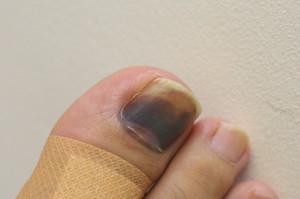 血腫を作ったときは痛くて痛くて、骨折したのではないかと思うほどだった。 どうやら爪が剥がれる状態は脱した様であるが、以来例の登山靴 に不信感を持ってしまった。